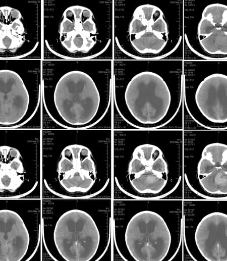 Brain scans of a six-year-old girl with medulloblastoma
