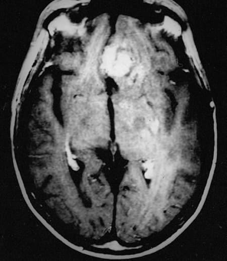 Scan of a glioblastoma brain tumor