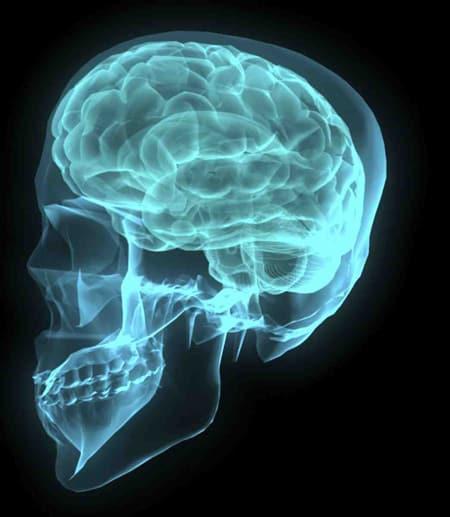 Brain and skull rendering