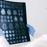 Person holds up images of a brain on film